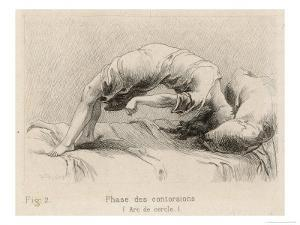 Mental Patient at la Salpetriere Going Through the Phase of Contortions by P. Richer