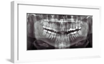 Panoramic Dental X-ray--Framed Giclee Print