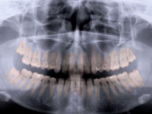 Panoramic X-Ray of Mouth