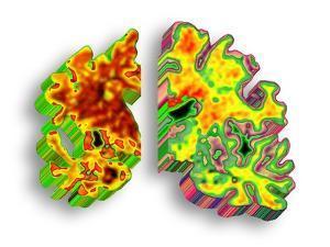 Alzheimer's Disease, Artwork by PASIEKA