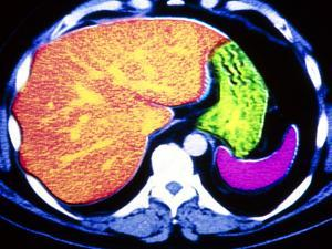 Coloured CT Scan of Human Spleen, Stomach & Liver by PASIEKA