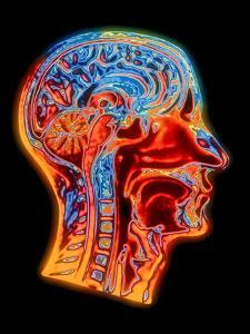 Coloured MRI Scan of the Human Head (side View) by PASIEKA