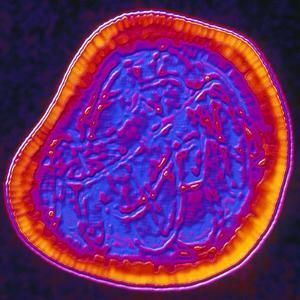 Coloured TEM of a Rubella (German Measles) Virus by PASIEKA