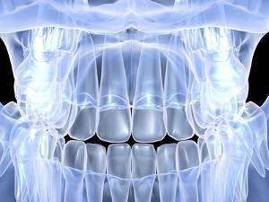 Human Skull with Teeth, Computer Artwork by PASIEKA