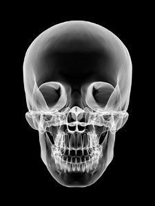 Human Skull, X-ray Artwork by PASIEKA