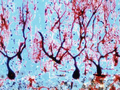 LM of Cerebellar Tissue with Purkinje Cel