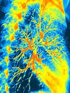 Lung Bronchogram, Coloured X-ray by PASIEKA