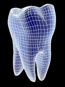 Molar Tooth by PASIEKA