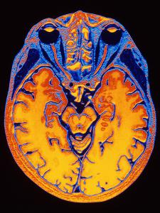 MRI Brain Scan by PASIEKA