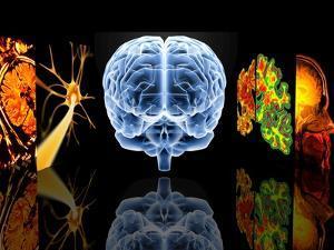 Neurology by PASIEKA