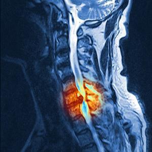 Slipped Disc, MRI Scan by PASIEKA