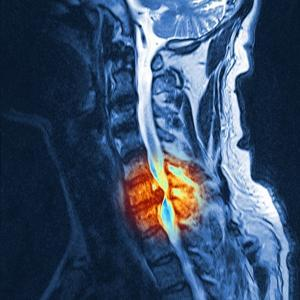 Slipped Disc, MRI Scan by PASIEKA