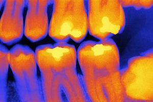 Teeth with Fillings, X-ray by PASIEKA