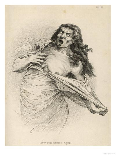 Patient at la Salpetriere Hospital Paris Depicted in the Throes of a Demoniac Attack--Giclee Print