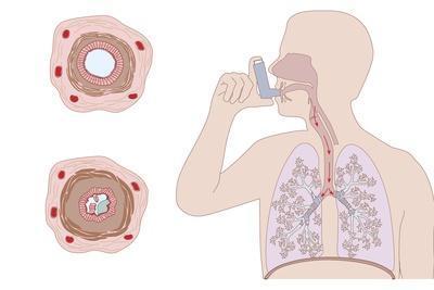 Asthma Pathology And Treatment, Diagram