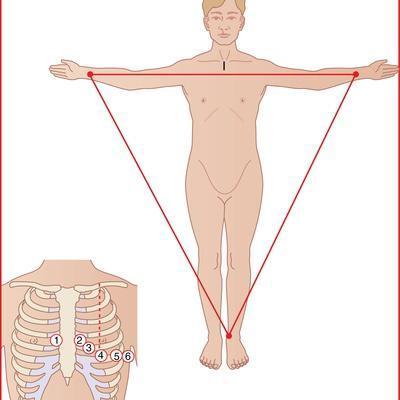 ECG Electrode Placement, Artwork