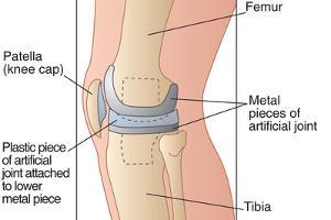 Knee Replacement, Artwork by Peter Gardiner