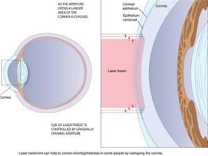 Laser Eye Surgery, Artwork by Peter Gardiner