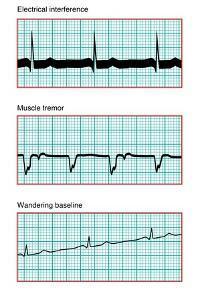 Three Electrocardiograms, Artwork by Peter Gardiner