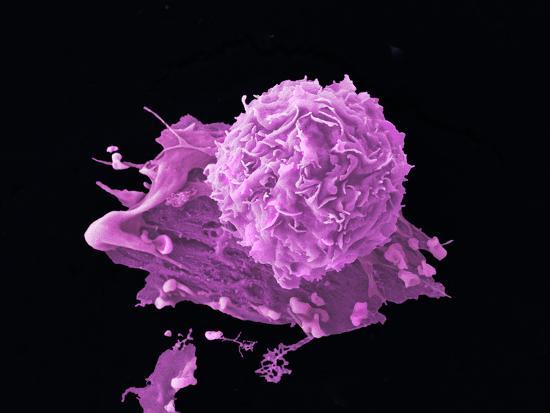 anne-weston-breast-cancer-cell-sem