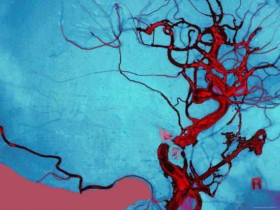 blocked-vein-brain-burst-aneurysm-cerebral-blood