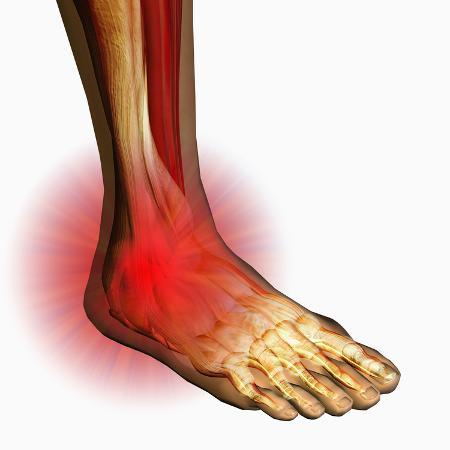 carol-mike-werner-ankle-pain-human-ankle-showing-bones-and-muscles