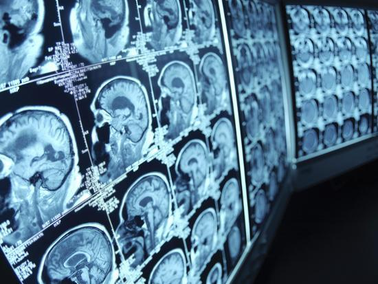 cat-scan-images-of-brain