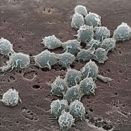 david-phillips-macrophages-on-the-surface-of-endothelium-sem-x3000