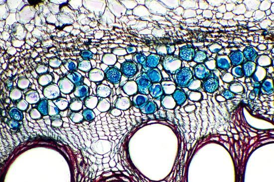 dr-keith-wheeler-phloem-plant-cells-light-micrograph