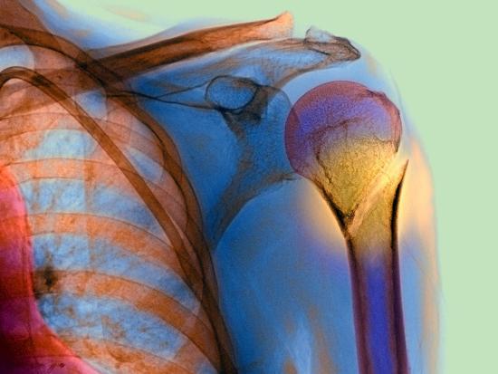 du-cane-medical-broken-upper-arm-bone-x-ray