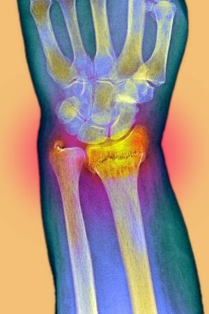 du-cane-medical-broken-wrist-x-ray