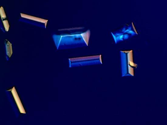 frederick-skvara-urine-with-triple-phosphate-crystals-unstained-dic-view