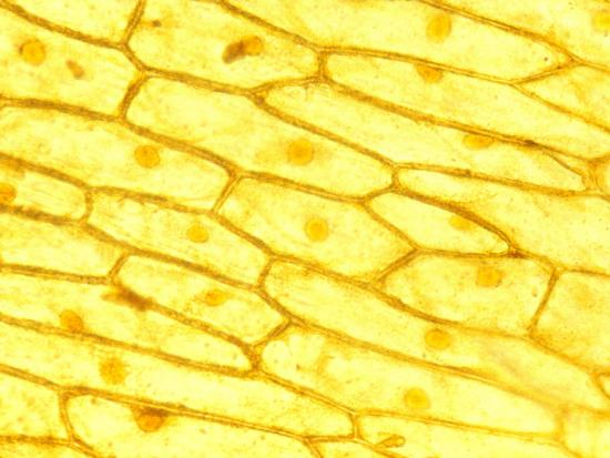 kevin-betty-collins-onion-cells-with-visible-nuclei-iodine-stain