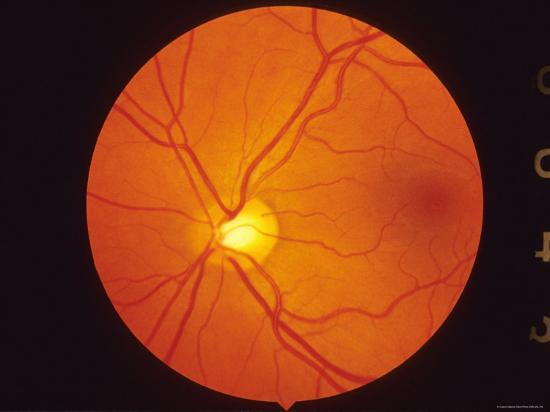 normal-retina-view-thru-fundus