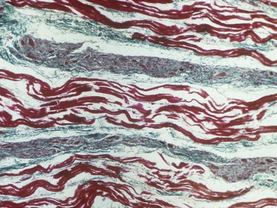 ralph-hutchings-cardiac-muscle-showing-purkinje-fibers-in-a-bundle-of-his-longitudinal-section-lm-x80