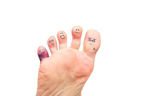 soupstock-foot-problems-broken-toe-and-calluses