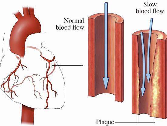 this-medical-exhibit-pictures-an-anterior-front-view-of-the-heart-and-coronary-arteries