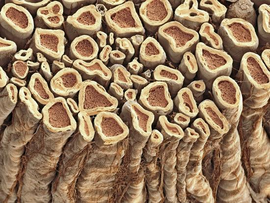 thomas-deerinck-spinal-root-nerves-sem