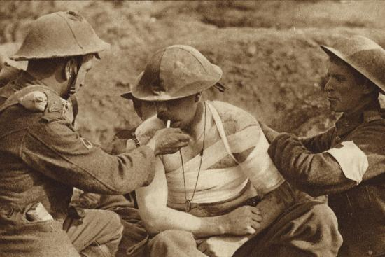 wounded-but-not-too-ill-for-a-smoke-world-war-i