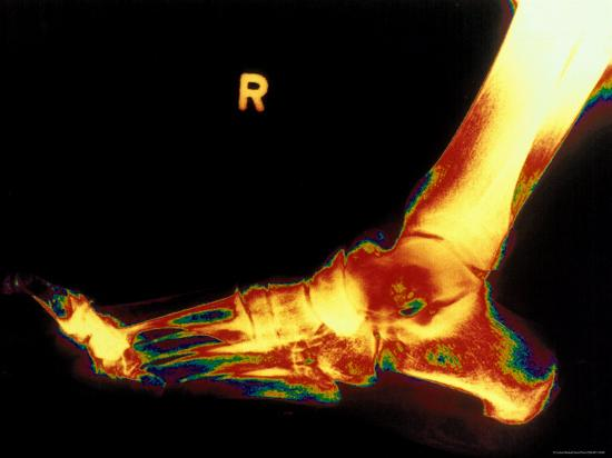 x-ray-of-foot-right-foot
