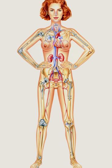 Prosthetic Woman: Artwork of Artificial Implants-John Bavosi-Photographic Print