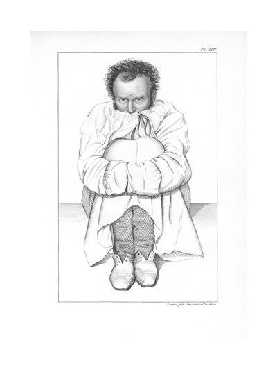 Psychiatric Patient, 19th Century-King's College-Giclee Print