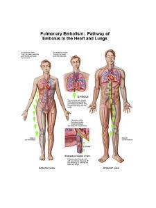 Pulmonary Embolism, Pathway of Embolus to the Heart and Lungs