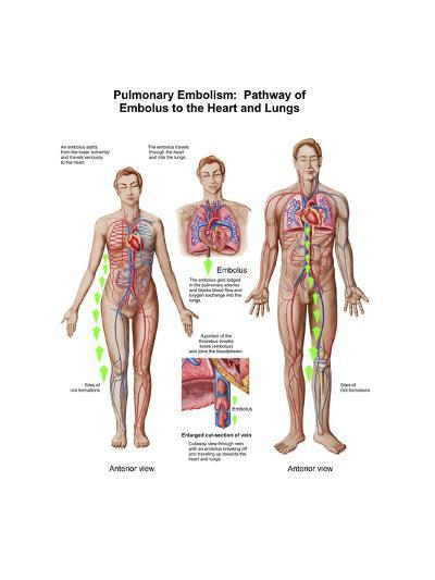 Pulmonary Embolism, Pathway of Embolus to the Heart and Lungs--Art Print