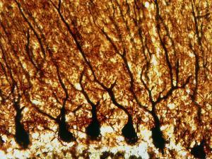 Purkinje Nerve Cells