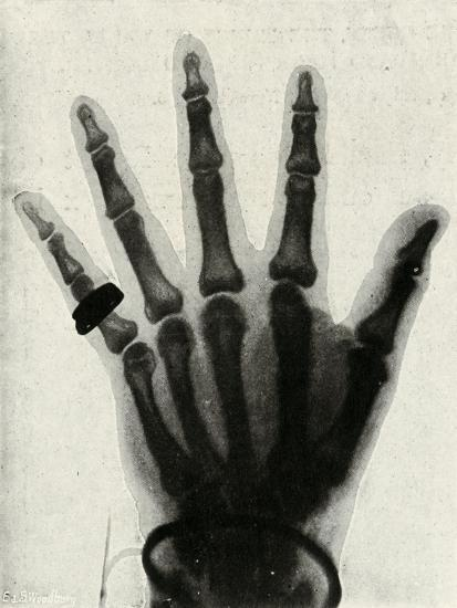 'Radiograph of the Hand of H.R.H. The Prince of Wales', (c1897)-Unknown-Giclee Print