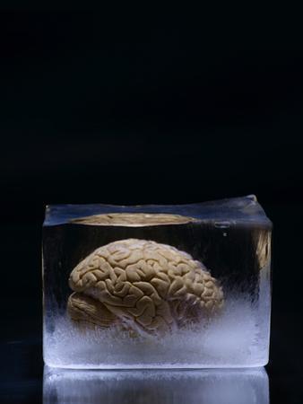 A Human Brain Frozen in a Block of Ice by Rebecca Hale