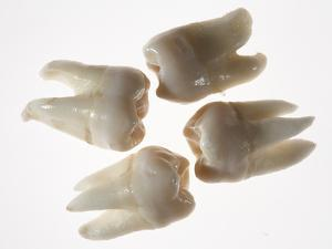 Four Wisdom Teeth by Rebecca Hale