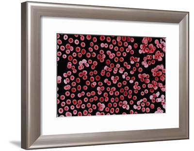 Red Blood Cells, SEM-Dr. Yorgos Nikas-Framed Photographic Print