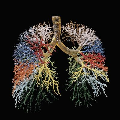 Resin Cast of Lungs, Bronchial Tree-Ralph Hutchings-Photographic Print